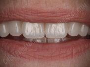 Implants case 3 after